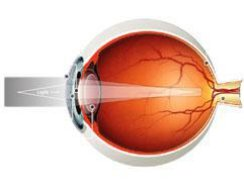 Age Related Vision Problems - Presbyopia